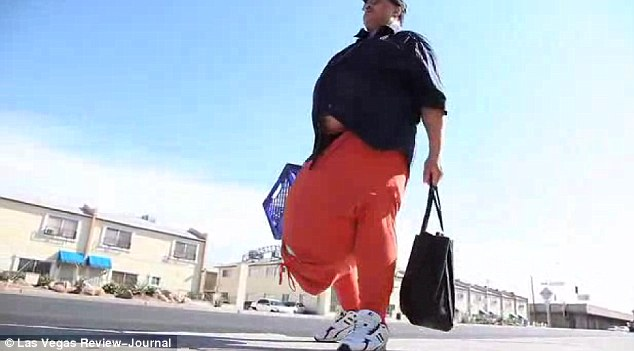 132 Pound Scrotum http://cybergazing.wordpress.com/2013/04/30/man-has-surgery-to-remove-132lb-scrotum/