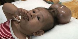 'Parasite Twin' Born in India